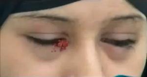 فتاة من اليمن دموعها تتحول إلي أحجار