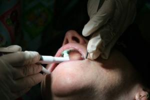 طبيب أسنان يقتلع أسنان سيدة لرفضها تسديد الفاتورة