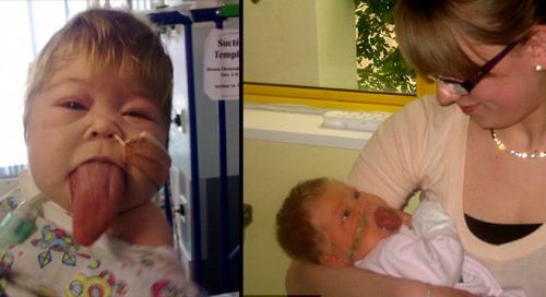 بريطانيا : طفلة تعاني من مرض نادر تسبب بجعل لسانها لا يتوقف عن النمو