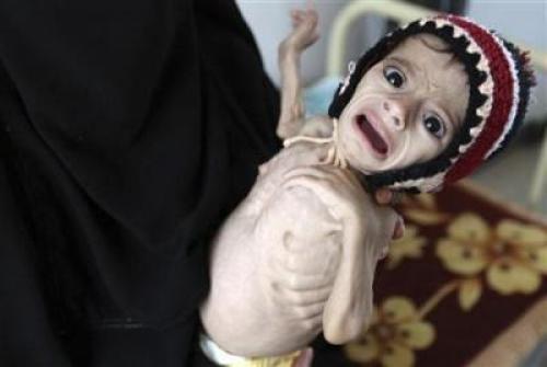 منظمة الصحة العالمية تؤكد علي معاناة قرابة المليار إنسان من سوء التغذية