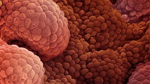 أستخدام الفيروسات لعلاج السرطان