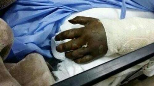الإهمال الطبي يقود فتاة دخلت مستشفي لإجراء عملية في اللوزتين ببتر في اليد
