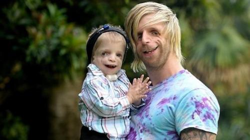 بريطاني مصاب بمرض نادر جداً يسافر أستراليا لخفف عن طفل يعاني من نفس المرض