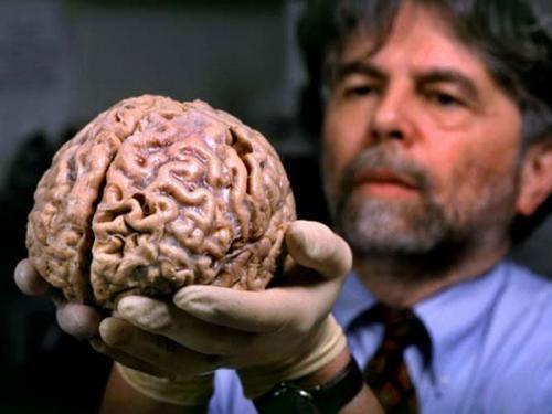 تعرف علي أغرب الظواهر التي يمر بها مخ البشر