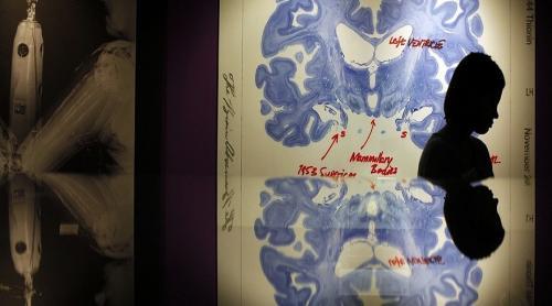 لن تصدق تأثير تعلم العديد من اللغات علي بنية المخ