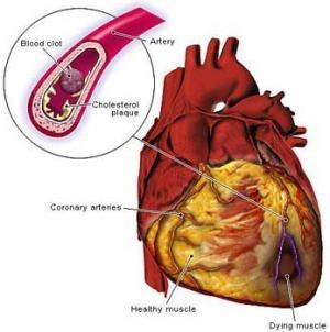 أمراض القلب تحصد أرواح 1.1 مليون شخص سنوياُ