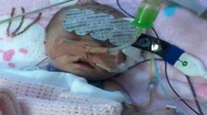 علماء أميركيين يزرع جهاز تنظيم ضربات القلب لطفلة عمرها 15 دقيقة